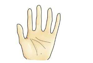 痣的位置与命运图,痣相,手掌有痣