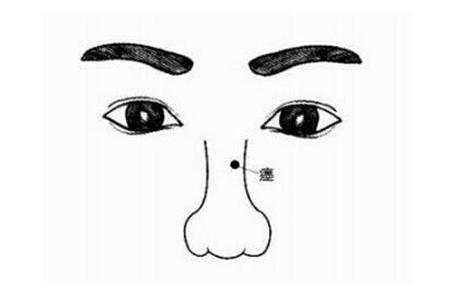 鼻子上的痣有怎样的特殊之处?