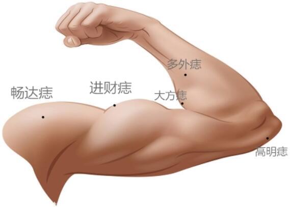 手臂痣的位置与命运图